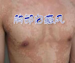 胸部白癜风会给患者带来了哪些危害