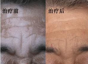老年白癜风治疗方法