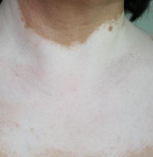 完全型白癜风疾病要如何来诊断