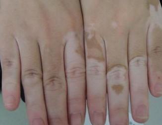 手部白癜风给患者带来哪些危害