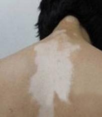 背部白癜风常见危害有哪些