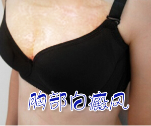 女性胸部出现白癜风该怎么治疗比较好