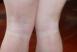治疗腿部白癜风需要注意哪些