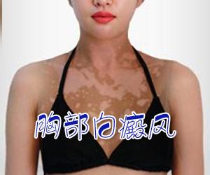 女性胸部白癜风常见病因有哪些