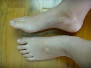 脚部白癜风患者需要注意什么