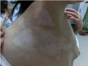 女性白癜风患者皮肤怎么护理
