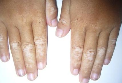 手部白斑扩散常见的问题是什么