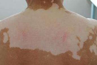引起背部白癜风病因有哪些