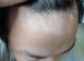 头部白癜风有哪些症状