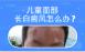 北京专科医院专家解答儿童脸上长的白斑是白癜风?